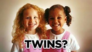 10 Strange Facts About Twins