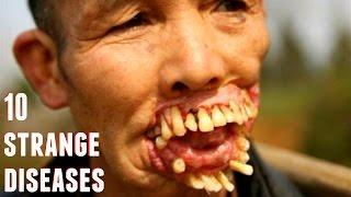 10 Scariest Diseases in the World - Unreal Mutations and Medical Condition