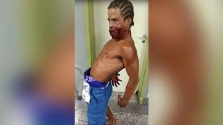 Aterrador vídeo muestra un hombre poseído con un disparo en la cara en un hospital de Brasil