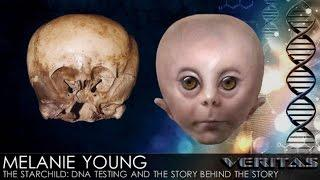 Veritas Radio - Melanie Young, RN - 1/2 - The Starchild: DNA Testing and the Story Behind the Story