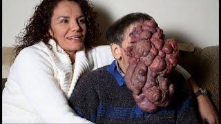 10 Rare Types Of Cancer
