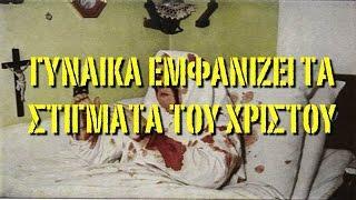 ΣΥΡΙΑ:Γυναίκα εμφανίζει τις πληγές του Χριστού.